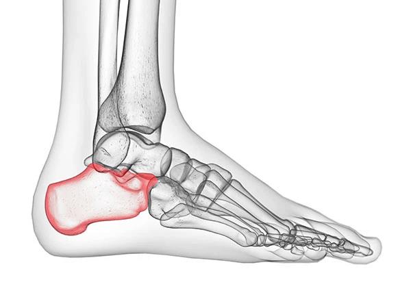 heel of foot