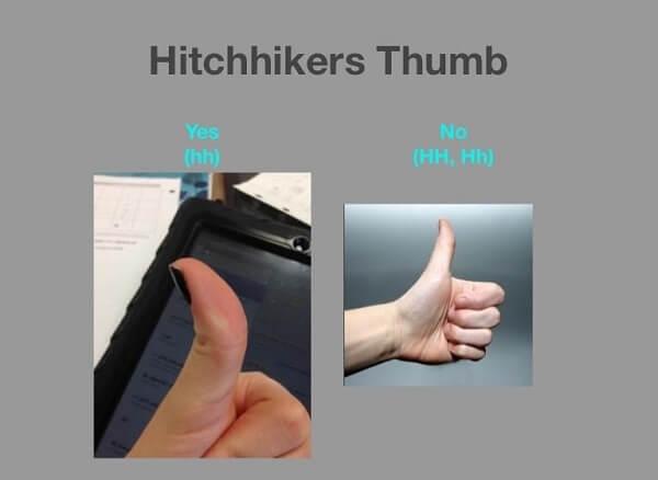 hitchiker thumb