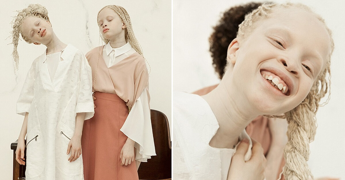 Albino twins from Brazil